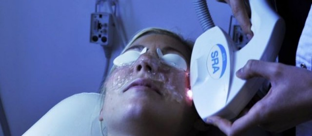 Bliv endnu smukkere med laserbehandlinger